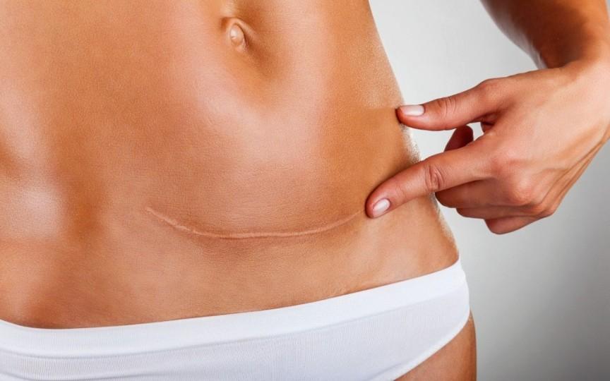 Cum să tratezi cicatricea de după cezariană