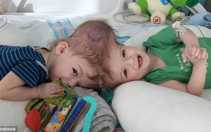 După 27 de ore de operație, doi gemeni alipiți în zona capului au fost separați. Imagini emoționante!