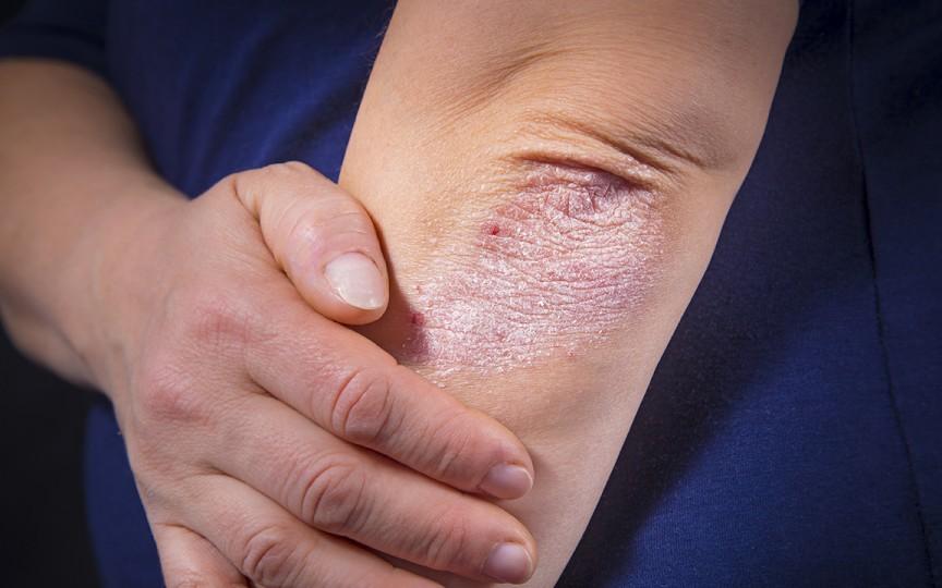 Psoriazis: cauze, simptome, tratament