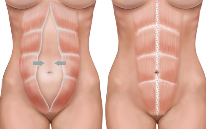 Diastaza în sarcină: ce este și cum o putem trata