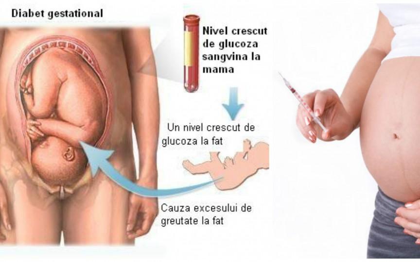 Tot ce trebuie să știi despre diabetul de sarcină (gestațional)
