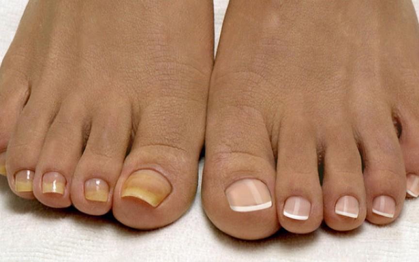 Primele semne că ai ciuperca unghiei