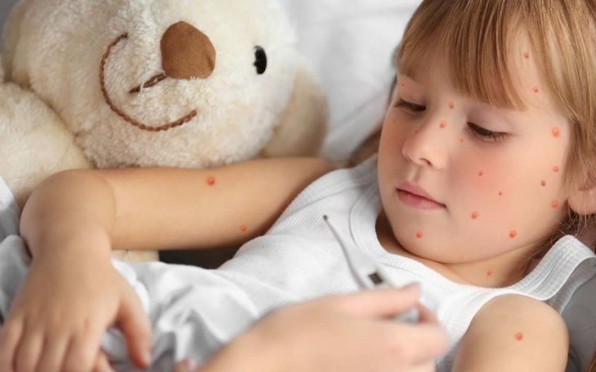 16 copii din Ceadîr-Lunga s-au îmbolnăvit de rujeolă. Unul dintre ei era vaccinat