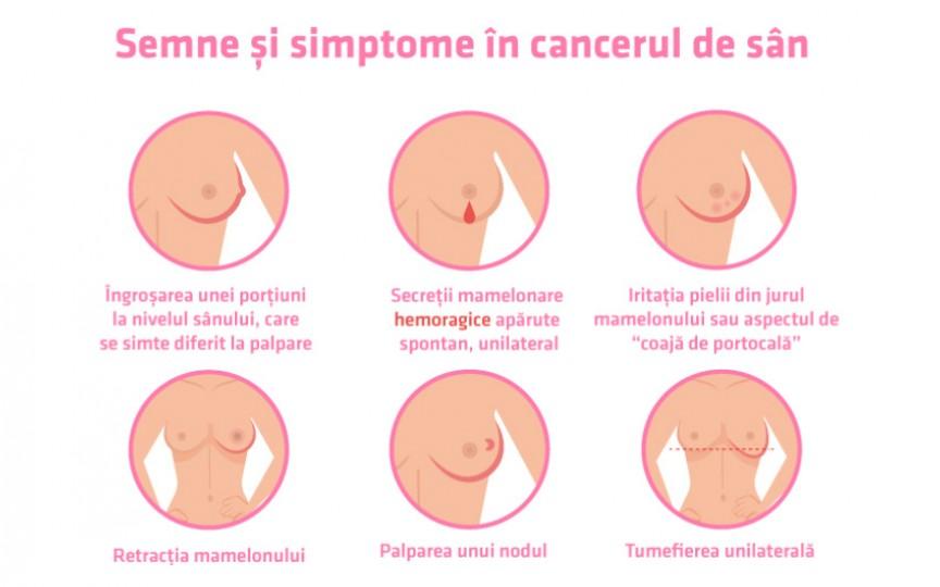 Medic oncolog: Durerea de sân le sperie pe femei, însă cel mai frecvent semn al cancerului mamar este altul