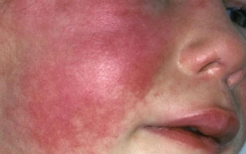 10 copii de la o grădiniță din capitală au fost diagnosticați cu scarlatină