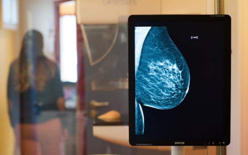 Mamografia – o necesitate. Vezi unde găsești la noi unicul utilaj de ultimă generație pentru mamografie!