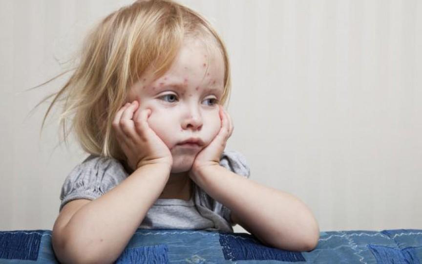 Trei Copii Au Decedat Din Cauza Rujeolei în România