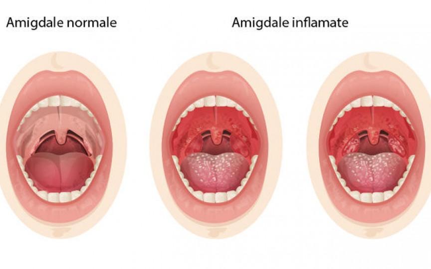 Medic ORL: Un copil nu ar trebui să sufere de amigdalită mai mult de două ori pe an