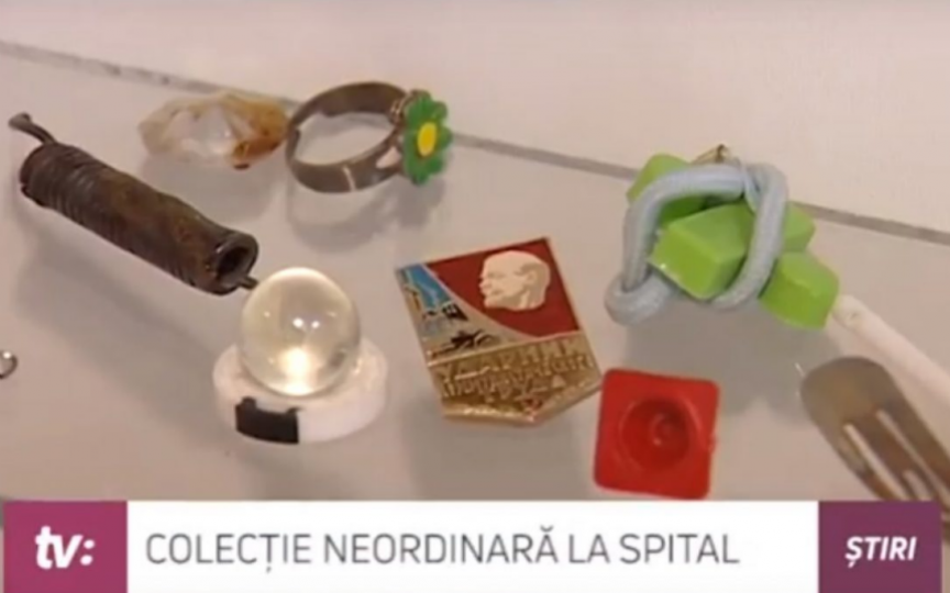 Colecție curioasă la Institutul Mamei și Copilului: obiecte înghițite de copii