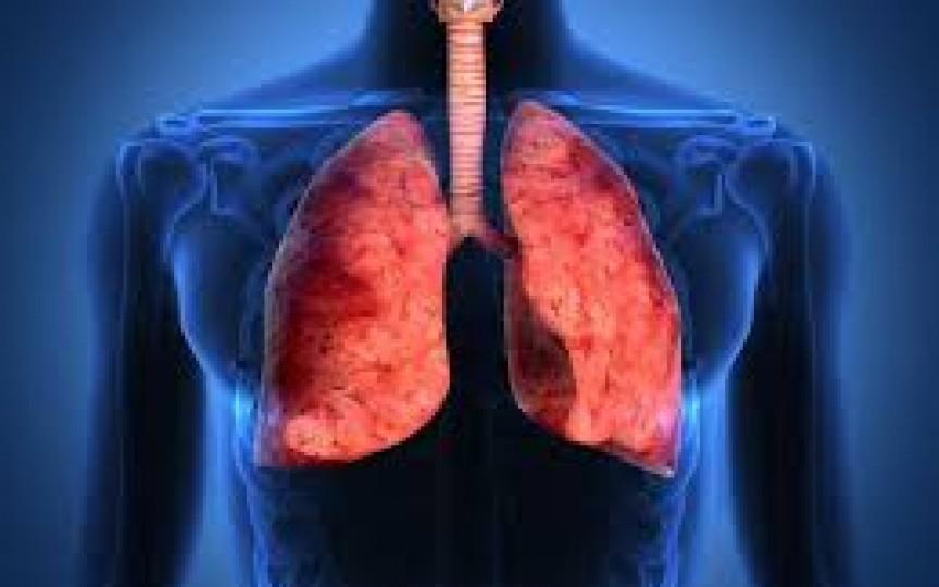 pierderea în greutate pneumonie atipică b50 pierderea în greutate