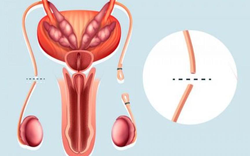 Medic obstetrician-ginecolog despre vasectomie: Această metodă de sterilizare definitivă a bărbatului nu afectează nivelul de testosteron