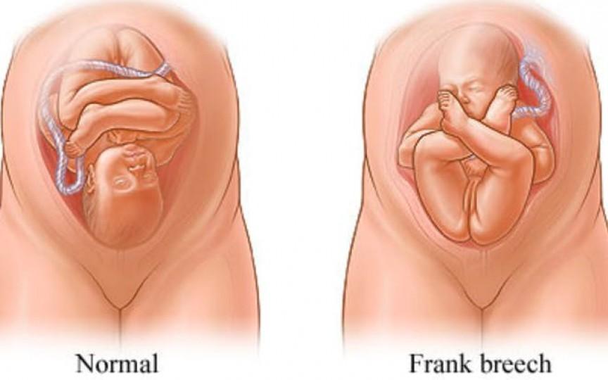 Medic primar obstetrică-ginecologie despre pozițiile bebelușului în timpul nașterii și ce complicații pot provoca