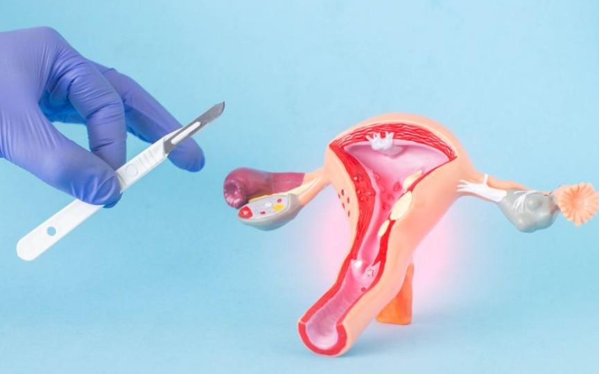 Medic chirurg ginecolog: 5 riscuri la care te supui dacă apelezi la embolizarea arterelor uterine și fibromul uterin