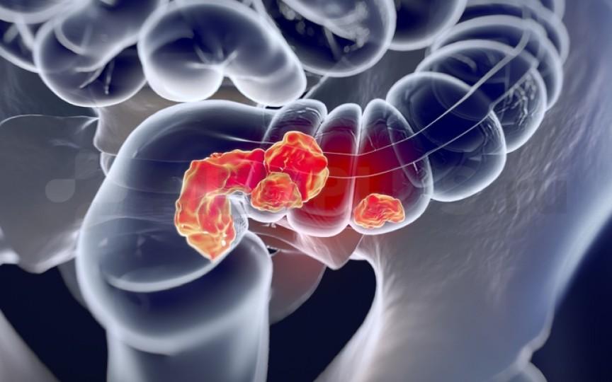 Patru semne principale ale cancerului de colon, dar pe care majoritatea oamenilor le ignoră