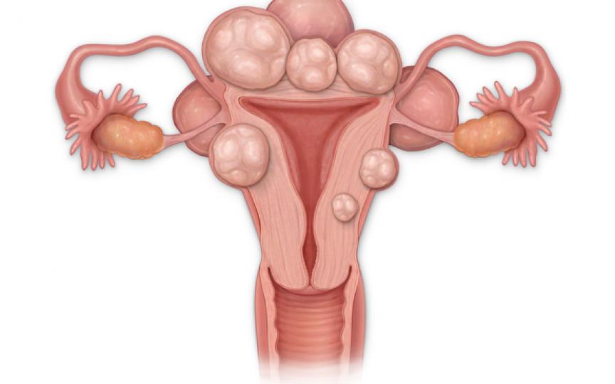 Medic: Aproape 40% dintre femeile de până la 35 de ani dezvoltă un fibrom uterin