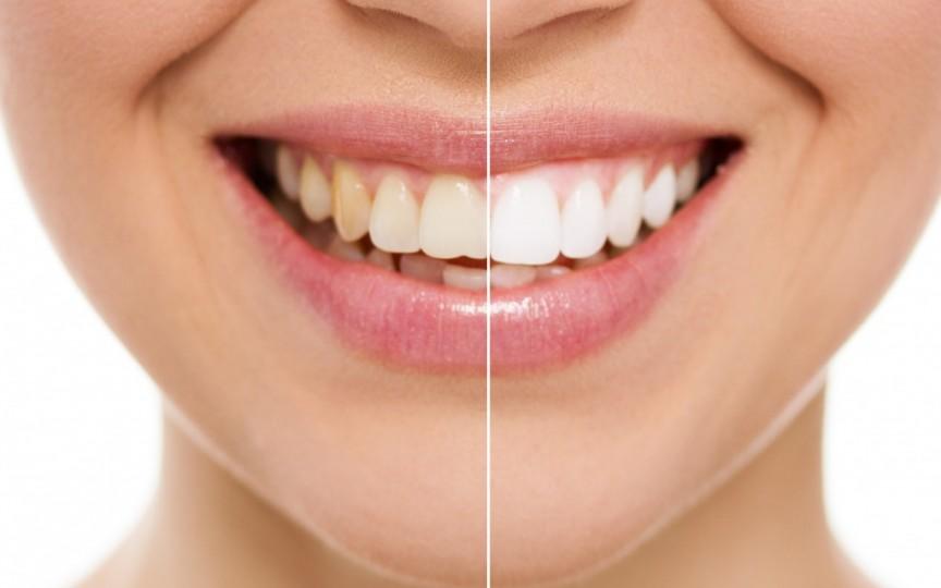 Clătitul gurii cu ulei: dinți mai albi, mai sănătoși și organism fără toxine