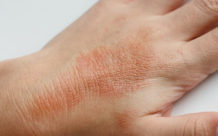 Pediatru Dorina Agachi, despre cauza-efect dintre carantină și problemele de piele la copii