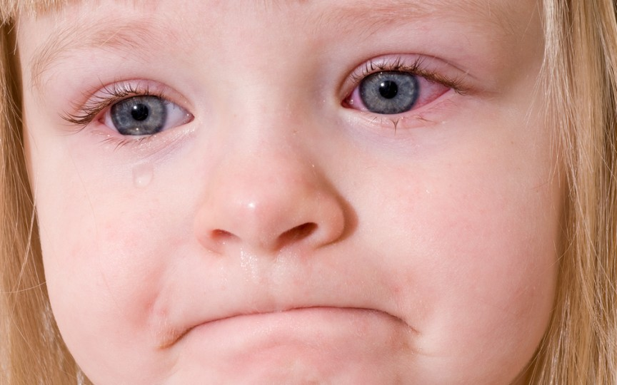 CONJUNCTIVITA la copii – simptome şi tratament