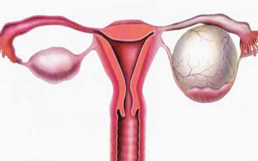 Chisturile ovariene: 13 mituri spulberate de medicul ginecolog