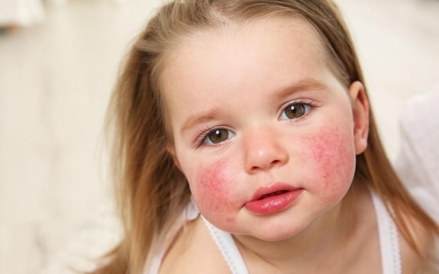 Pot depăși copiii alergiile alimentare?