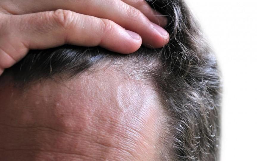 Ce este dermatita seboreică și cum se tratează