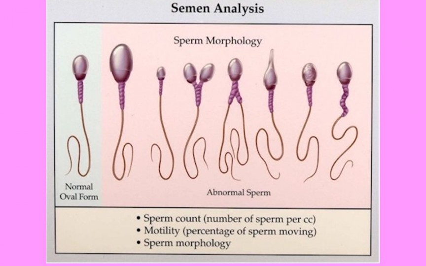 Specialist urologie-andrologie despre cele mai des întâlnite cauze ale infertilităţii la bărbaţi