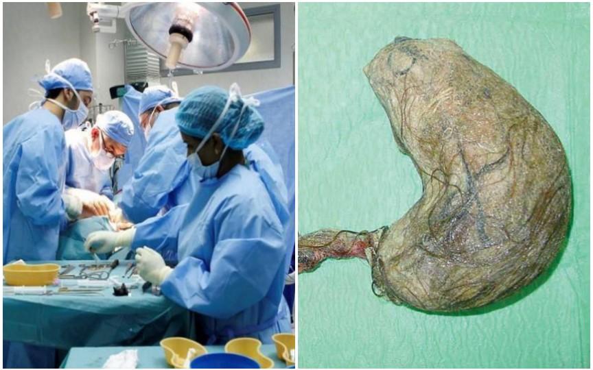 Intervenție chirurgicală neobișnuită: Medicii au înlăturat din stomacul unei adolescente un cheag de păr de 6 kg