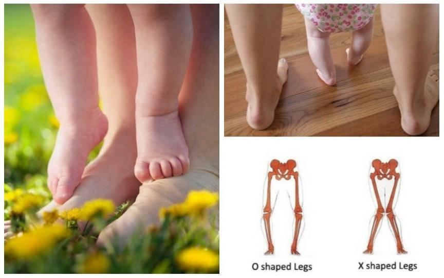 5 tulburări de mers la copii. Când trebuie să mergeți la specialist
