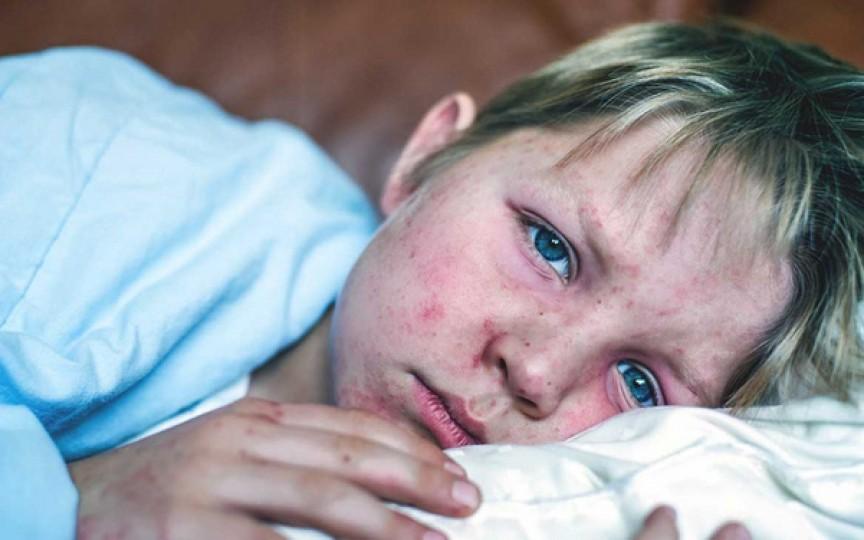 Peste 280 de cazuri de rujeolă, majoritatea fiind înregistrate luna trecută. Pericolul de infectare rămâne ridicat!