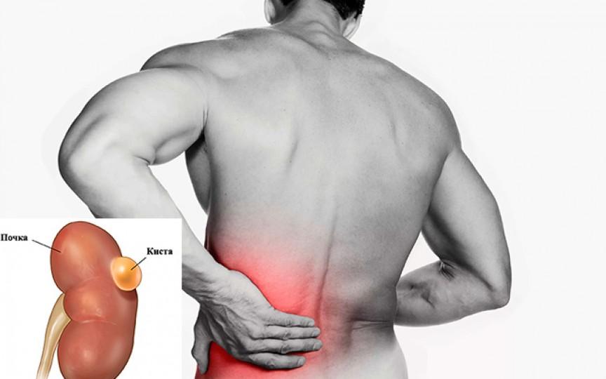 Chistul renal: simptome și cauze