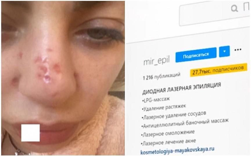 O femeie amenință cu judecata o esteticiană după ce i-a deteriorat pielea