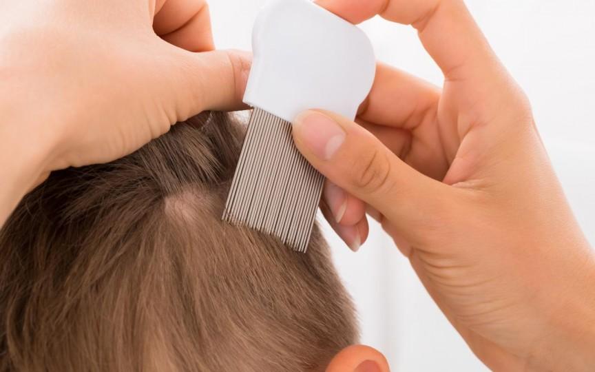Medic pediatru despre cum prevenim și tratăm păduchii la copii