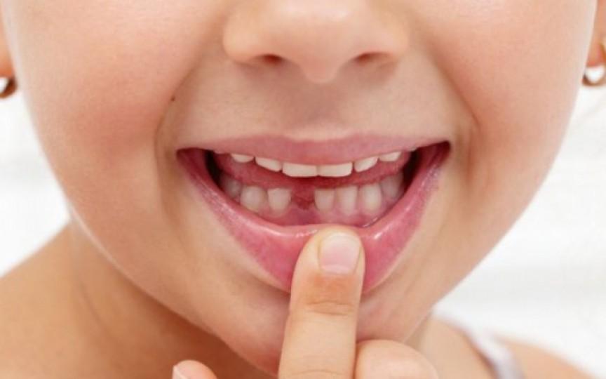 Cât de importantă este sănătatea dinților de lapte și unde greșesc părinții