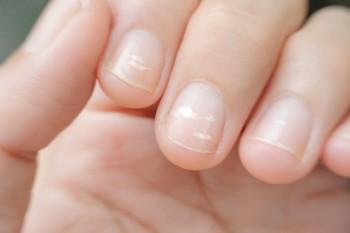 Petele albe sub unghii - indicator al unei probleme de sănătate